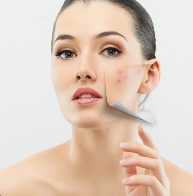 Cómo mejorar el acné adulto