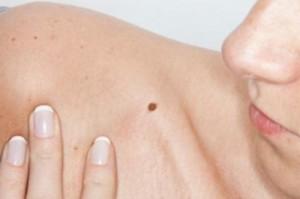 ¿Un lunar en la piel o un aviso de cáncer?